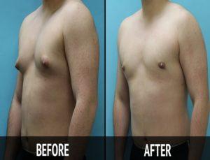 gynecomastia chest